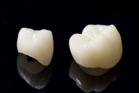 自然な歯を作る補綴技術