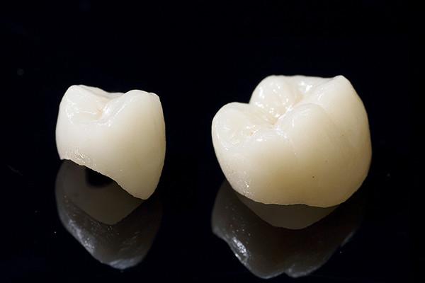 1.自然な歯を作る精密補綴(ほてつ)技術