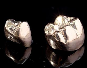 自然な歯を作る精密補綴術